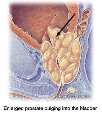 How to milk your own prostate picture 14