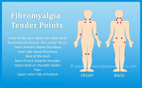 fibromyalgia picture 6
