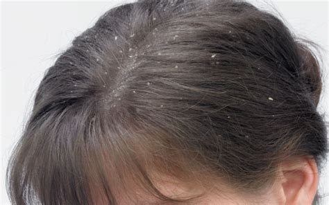 hair line cuts with yeast unfection picture 2