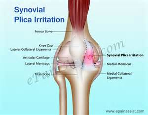 joint effusion suprapatellar region and medial joint compartment picture 15