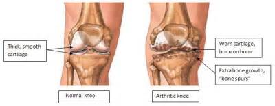 arthritic knee joint pain picture 5