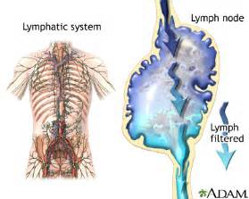 calcium in axillary lymph node and autoimmune disease picture 2