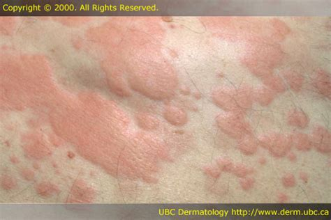 skin and cancer ociates picture 1