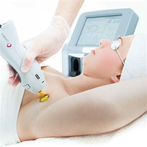 how much does laser hair removal cost picture 2