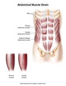 muscle strain picture 2