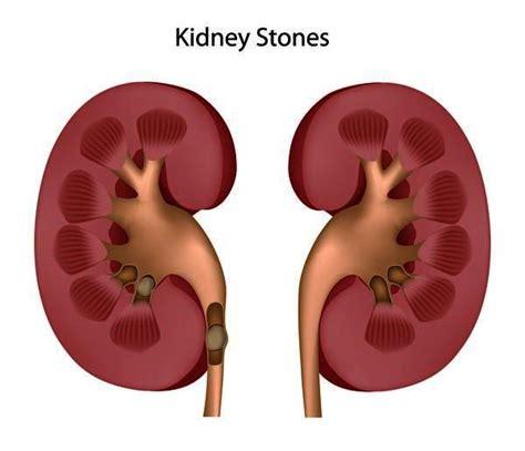 unani medicine for dissolving gall-stones picture 15