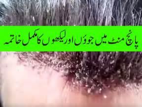 anti lice ke leye urdu tips picture 5