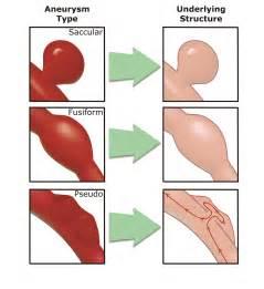 Aneurysm highl blood pressure picture 7