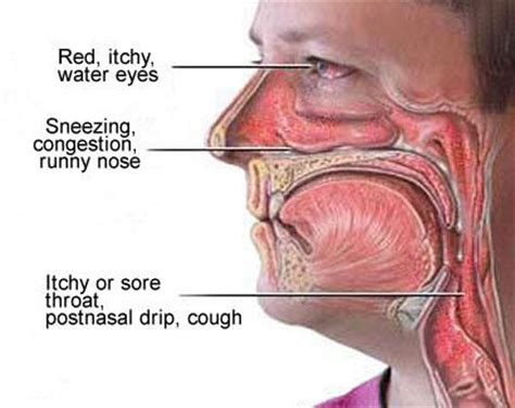 pain in sinus area,mouththroat picture 13
