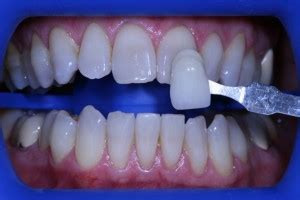 fairfield teeth whitening picture 9