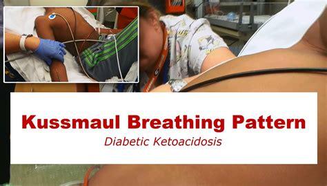 diabetic ketoacidosis picture 5