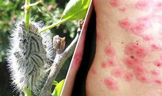 gypsy moths skin rash photos picture 1