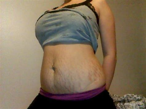 vicks for stretch marks before and after pics picture 6