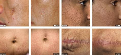 fraxel stretch mark removal photos picture 7