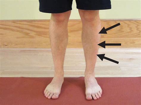 lump in leg muscle picture 10