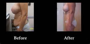 breast augmentation before and after in louisville ky picture 11
