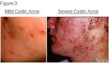 severe acne caused by prednisone picture 5