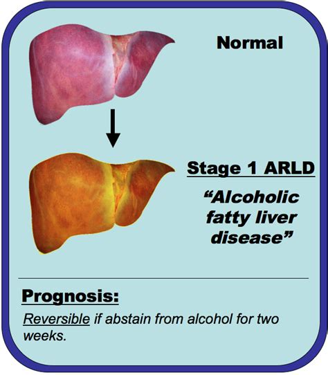 alcoholic liver disease picture 14