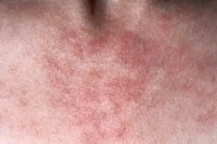 acne like rash that itches picture 15