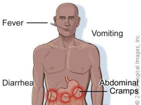 gastrointestinal infection in s picture 10