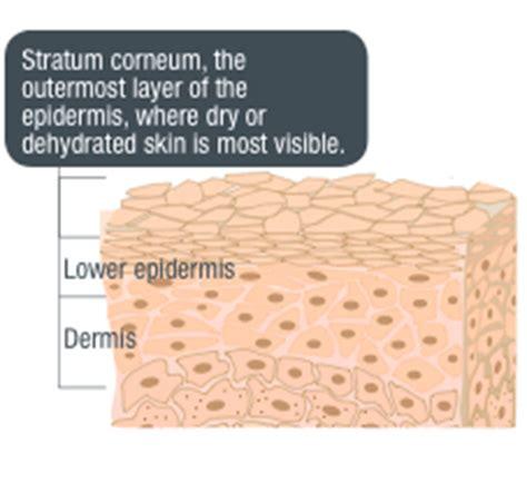 alipoid skin picture 2