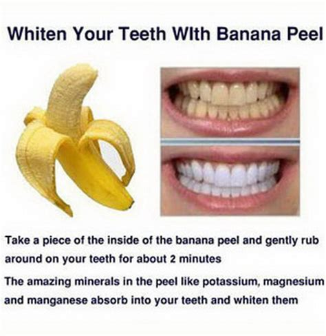 whiten your teeth to the max fast free picture 2