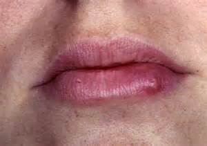 herpes symtoms picture 5
