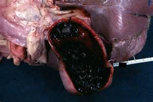 chronic gall bladder picture 1
