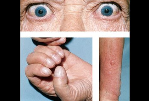 graves disease and skin changes picture 1