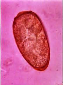 human liver flukes picture 6
