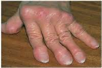 chronic fever low grade and swollen finger joints picture 6