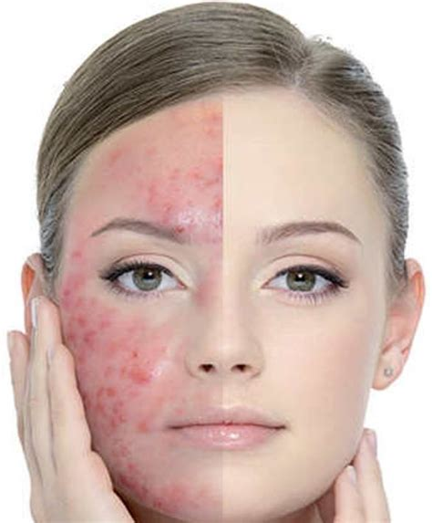 how quickly masturbation affects acne picture 9