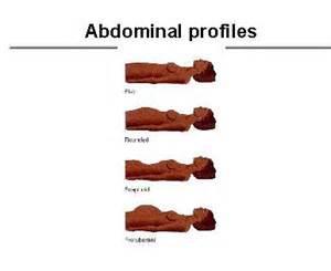 bladder procedures picture 13