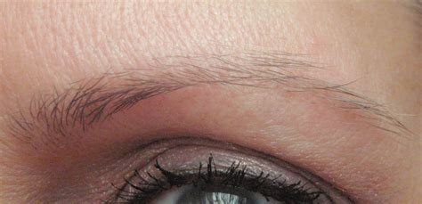 losing hair eyebrows picture 9