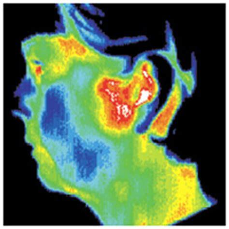 miami temporo-mandibular joint dysfunction picture 11