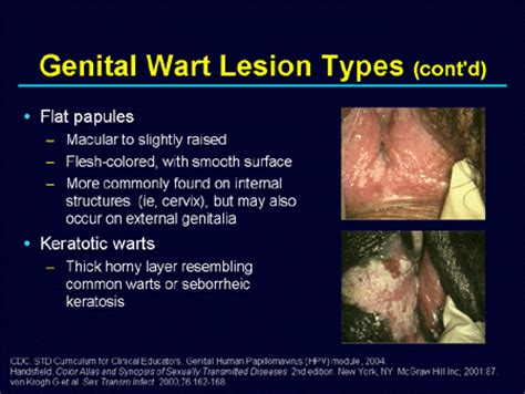 genital warts picture and their related homeopathy picture 11