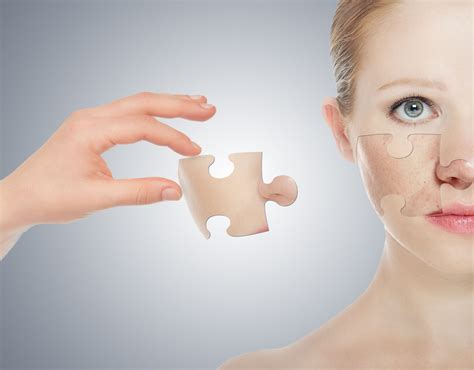 dermatologist female patient picture 6