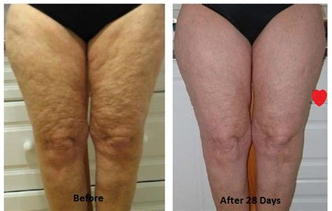 Get rid of dimple and cellulite in picture 1