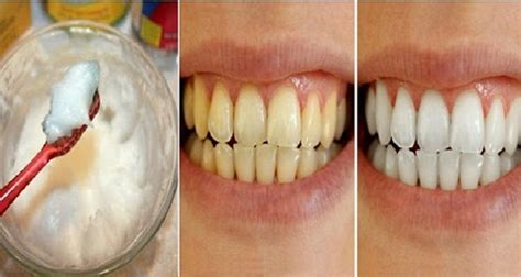 can you whiten teeth with cream of tarter picture 6