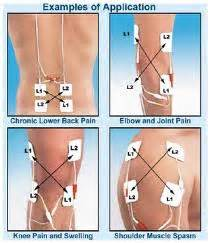 electrical stimulation of the prostate picture 5