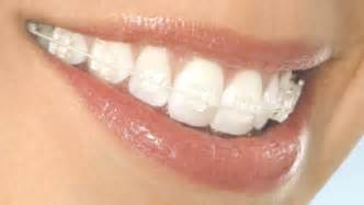fixing your teeth picture 14