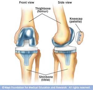 female knee joint replacement picture 19