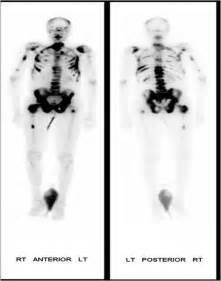 Prostate cancer and bone scans picture 1