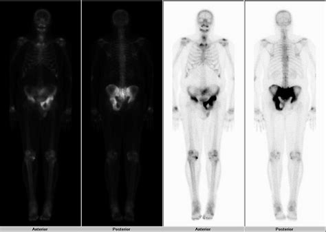 full bladder on a bone scan picture 11