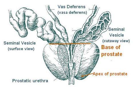 prostate diagram picture 10