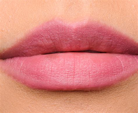 abnormal lips picture 2