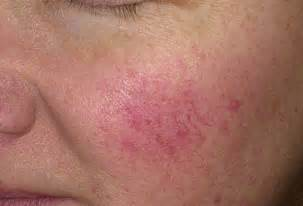 blood pimples on skin picture 5