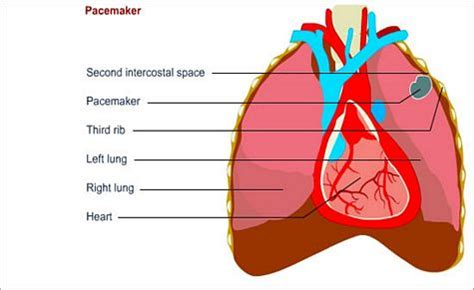 pacemaker special diet picture 6