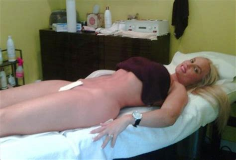 male genital electrolysis pictures picture 7