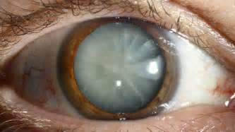 healing galing eye drops picture 1